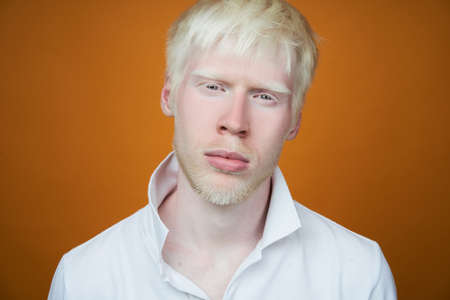 albinism Sad albino man white skin hair studio dressed t-shirt isolated yellow background. abnormal deviations. unusual appearance. skin abnormality Beautiful people with special appearance.
