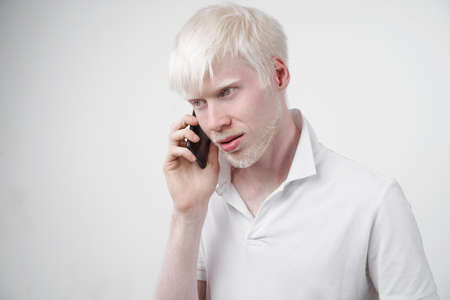 albinism albino man white skin hair studio dressed t-shirt isolated white background abnormal deviations unusual appearance abnormality Beautiful people Talking on the phone.
