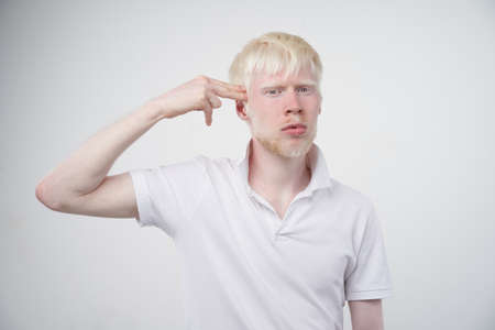 albinism Sad albino man white skin hair studio dressed t-shirt isolated white background. abnormal deviations. unusual appearance. skin abnormality Beautiful people with special appearance. Banque d'images