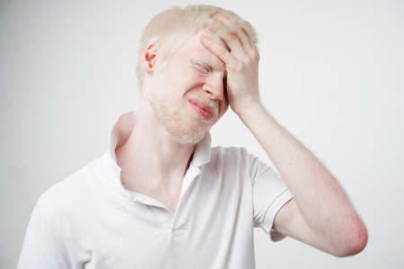 albinism Sad albino man white skin hair studio dressed t-shirt isolated white background. abnormal deviations. unusual appearance. skin abnormality Beautiful people with special appearance.