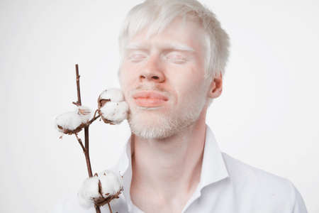 albinism Happy smile albino man white skin hair soft fluffy cotton brunch studio dressed t-shirt isolated white background abnormal deviations unusual appearance abnormality Beautiful people