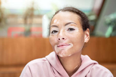 Black african american woman with vitiligo pigmentation skin problem indoor dressed pink hoodie close up portrait pensive black female thinking about 스톡 콘텐츠 - 165811607