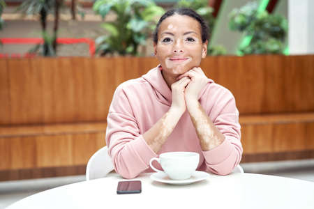 Black african american woman with vitiligo pigmentation skin problem indoor dressed pink hoodie sitting table Banque d'images