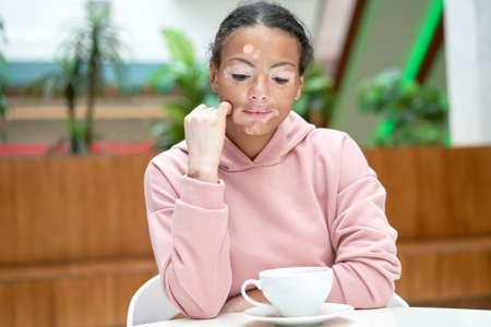 Black african american woman with vitiligo pigmentation skin problem indoor dressed pink hoodie melancholy mood Thinking about