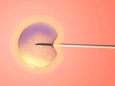 L'ins�mination artificielle. Aiguille de verre et des femmes sur l'ovule ym arri�re-plan. Digital illustration.