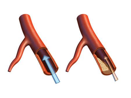 Art�re de fonctionnement r�gulier et de la formation de plaque ath�roscl�rose. Illustration num�rique.