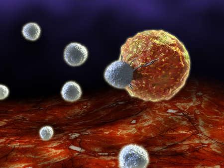 globulos blancos: C�lulas T atacando a una c�lula de c�ncer. Ilustraci�n digital.