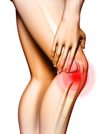 Pain originating in the knee area. Hand touching the upper leg just above the knee. Digital illustration.