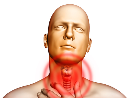 Medical illustration showingt pain located in the throat area. Digital illustration. 스톡 콘텐츠