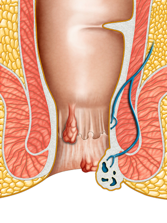 Anatomical drawing showing internal and external hemorrhoids. Digital illustration.