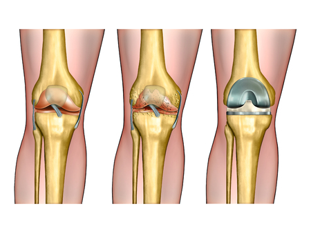 Healthy knee anatomy, degenerative arthritis of the knee and replacement surgery. Digital illustration.