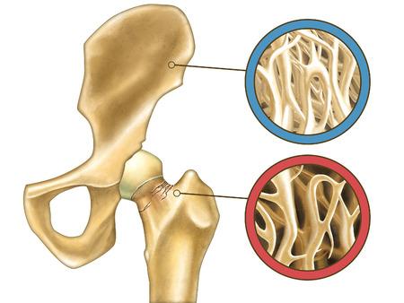 Skeleton close-up showing normal bone and osteoporosis. Digital illustration.