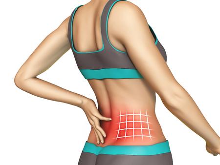 Schmerzen im unteren Rücken Grafik auf einem jungen weiblichen Körper. Digitale Illustration, Clipping-Pfad enthalten. Standard-Bild