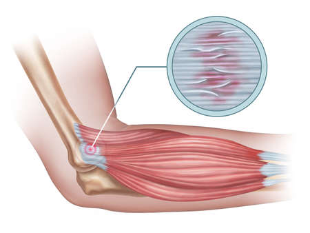 Tennis elbow diagram showing a detail of the damaged tendon tissue. Digital illustration.