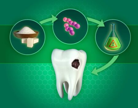 The process leading to the formation of dental cavities, caused by the production of acids by sugar consuming bacteria. 3D illustration. Stock Photo