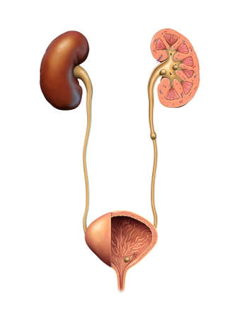 Kidney and urinary stones formation. Digital illustration.