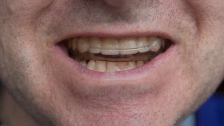 uomo che indossa il dente che protegge il paradenti closeup