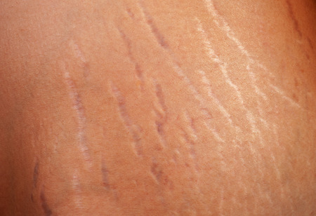 Stretch marks on the body of a pregnant woman