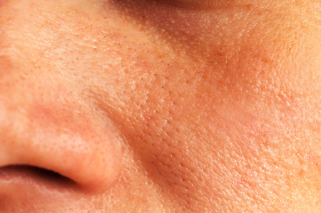 oily: Oily skin and pores on the face of the woman
