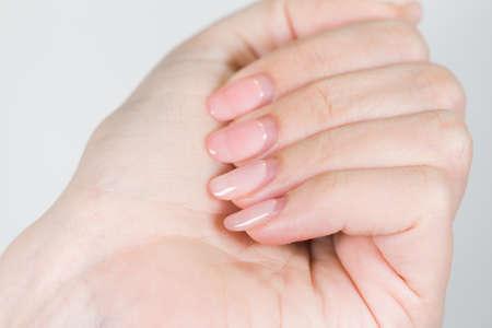 Primer plano de una mano blanca femenina con manicura pulida en gel antiguo que necesita corrección después de varias semanas de uso. Fotografía en color horizontal. Foto de archivo
