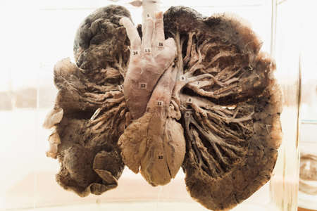 real human lungs. anatomical drug for the study of the respiratory system. Inside in formalin. Training of students medicine. The museum.
