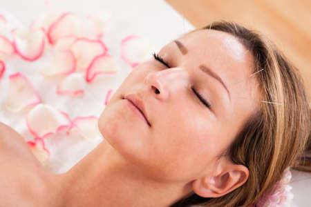 acupuntura china: Mujeres sometidas a tratamiento de acupuntura con una línea de finas agujas insertadas en la piel de la frente