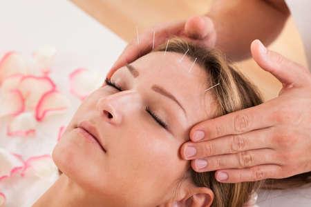 tratamientos corporales: Mujeres sometidas a tratamiento de acupuntura con una l�nea de finas agujas insertadas en la piel de la frente
