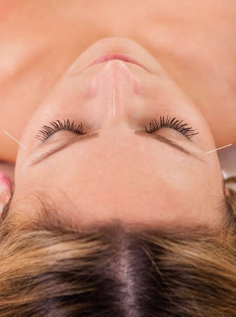 Woman undergoing acupuncture treatment with a line of fine needles inserted into the skin of her forehead Stock Photo - 16522087