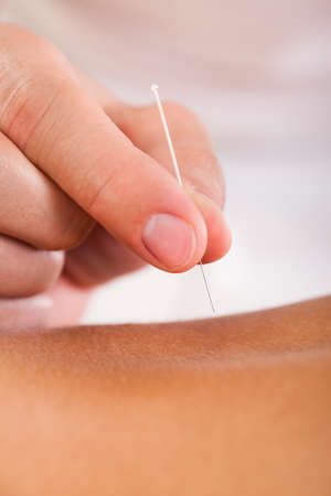 Acupuncture needle inserted by experienced professional only.