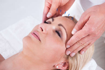 acupuncture: Detail Of A Woman  Receiving An Acupuncture Needle Therapy