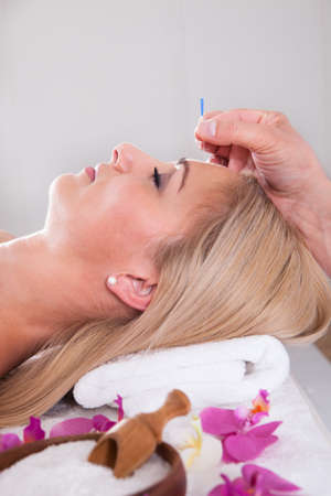 stimulate: Young Beautiful Woman In An Acupuncture Therapy In A Spa Center Stock Photo