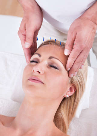 stimulate: Detail Of A Woman  Receiving An Acupuncture Needle Therapy