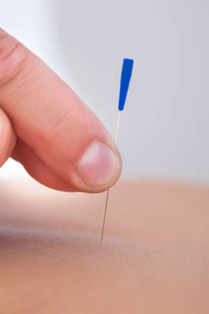 stimulating: Macro Detail Of A Hand Stimulating An Acupuncture Needle On The Back Of A Patient