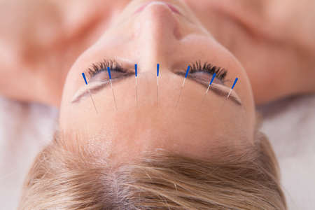 tratamientos corporales: Detalle de una mujer que recibe una terapia de acupuntura con agujas Foto de archivo