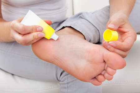 leg massage: Closeup of womans hand applying cream on feet Stock Photo