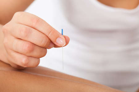 Close-up Of The Hand Stimulating Acupuncture Needle photo