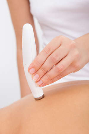 Close-up Of A Woman Getting Microdermabrasion Therapy In Spa photo