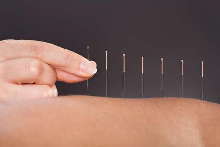 mujeres de espalda: Close-up de una persona obtener un tratamiento de acupuntura en el balneario