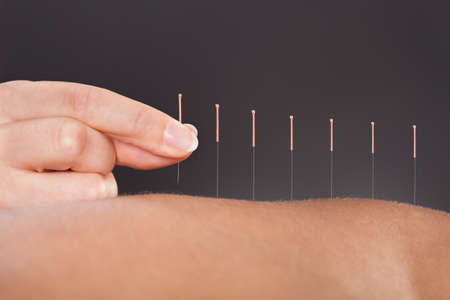 medical center: Close-up Of A Person Getting An Acupuncture Treatment At Spa Stock Photo
