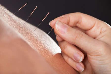 人の背中に鍼針を置くこと手のクローズ アップ 写真素材