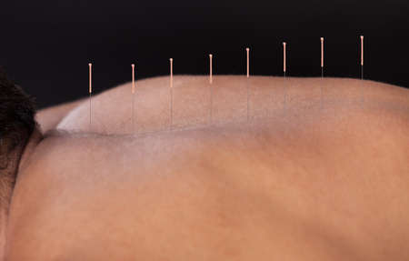 Close-up Of A Young Man Getting Acupuncture Treatment At Spa photo