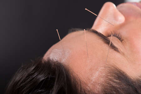 headache pain: Close-up Of A Young Man Undergoing Acupuncture Treatment At Spa