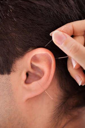 acupuncturist: Close-up De Un acupunturista Holding aguja cerca del o�do Foto de archivo