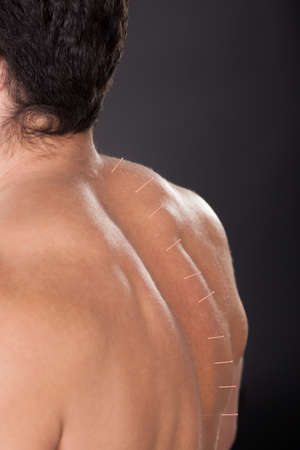 Close-up Of A Shirtless Man With Acupuncture Needles On Back photo