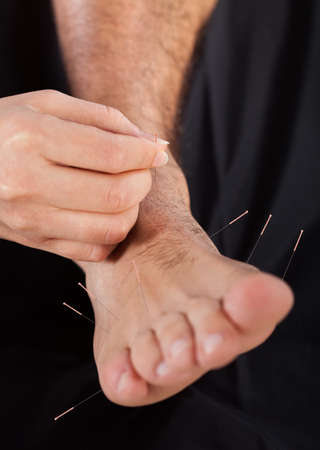Close-up Of A Persons Leg Undergoing Acupuncture Treatment photo