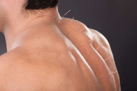 Close-up Of A Shirtless Man With Acupuncture Needles On Back Stock Photo