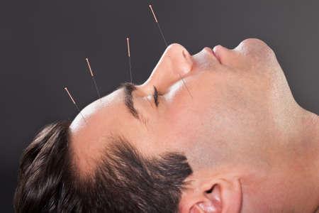 Close-up von einem jungen Mann durchmacht Akupunktur Behandlung im Spa