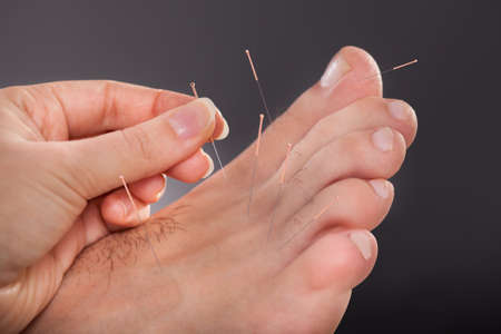 manos y pies: Primer plano de los pies de un hombre que recibe tratamiento de acupuntura