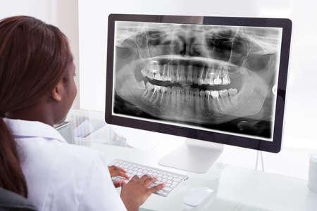 denti: Vista posterior de la mujer dentista examinando mand�bula Radiograf�a en equipo en la cl�nica Foto de archivo