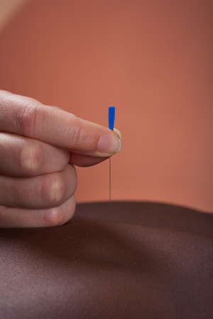 Closeup of woman receiving acupuncture treatment at beauty salon photo